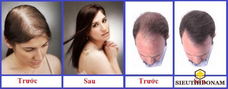 Thuốc mọc tóc Hair Tonic